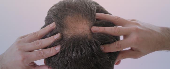 consultation-perte-cheveux