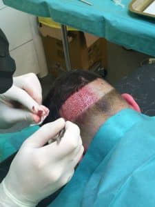 greffe cheveux, implant capillaire lyon